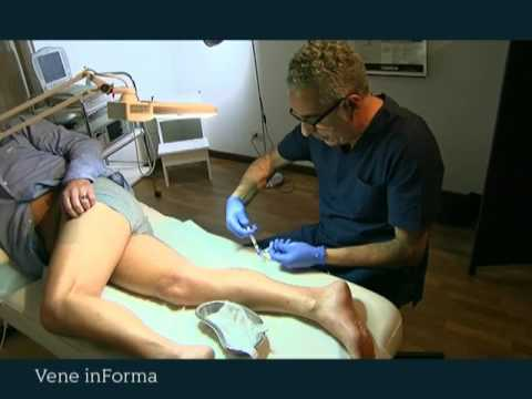 Massaggio di cellulite a varicosity