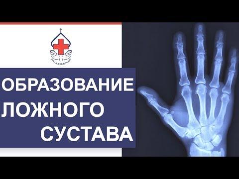 ✋ Последствия перелома ладьевидной кости и уникальные методы лечения. Перелом ладьевидной кости. 12+