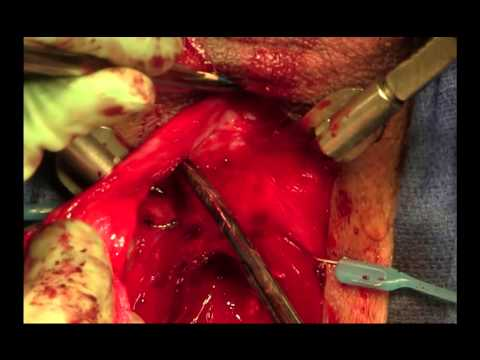 Posterior Urethroplasty For Pelvic Fracture Urethral Injury