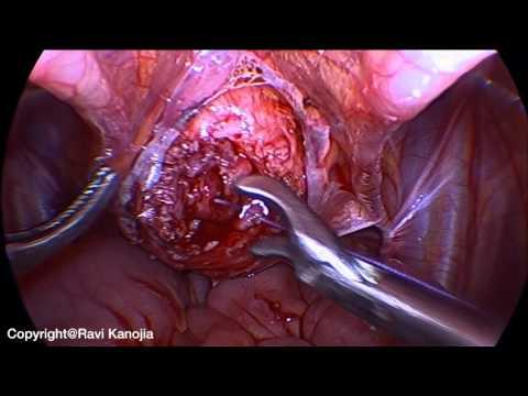 Cystolitotomia laparoskopowa