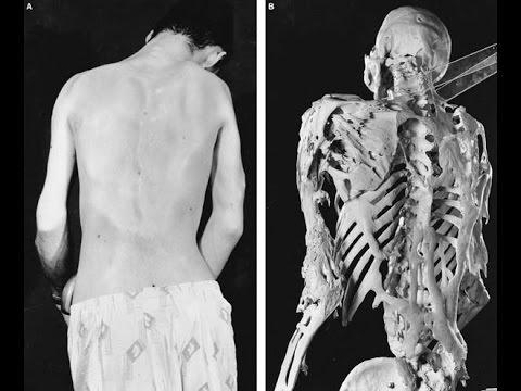 O mięśniach na zdjęciach