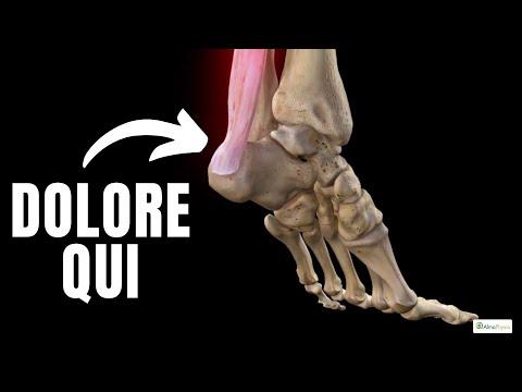 Come trattare il dolore nellarticolazione della spalla sinistra