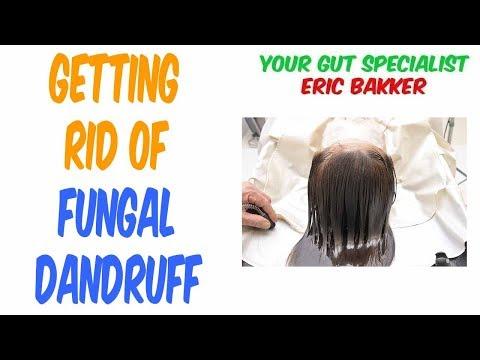 Bad Fungal Dandruff On Scalp