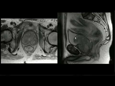 Terminazioni nervose della prostata