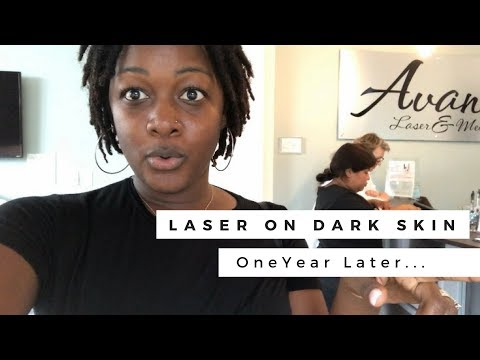 Laser Hair Removal on dark African-American Skin | Hyperpigmentation RECOVERY!