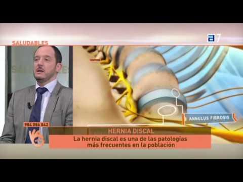Fisioterapia en el tratamiento de la osteocondrosis