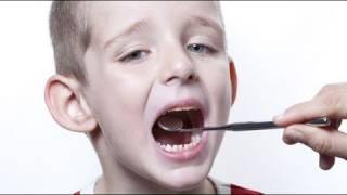 ¿Se deben empastar los dientes de leche?