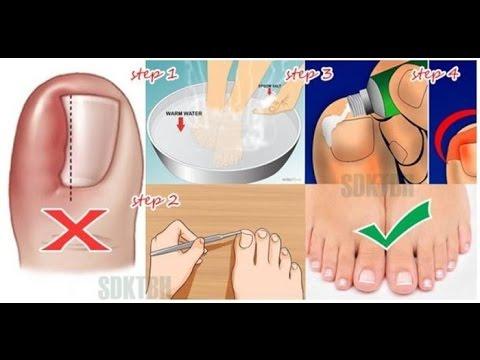 La fase inicial del hongo del pie