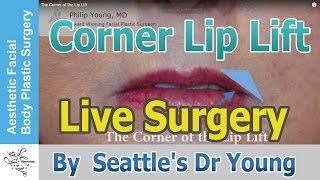 Live Surgery: The Corner of the Lip Lift, Seattle Bellevue's Award Winning Surgeon Dr Philip Young