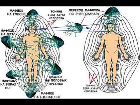 De los parásitos el organismo de la foto