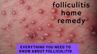 Everything you need to know about folliculitis   folliculitis home remedy