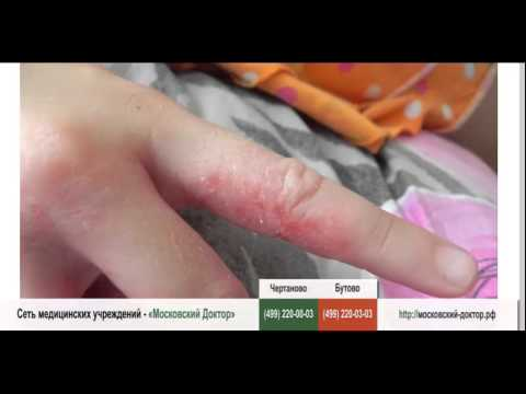 Аллергия пальцев рук