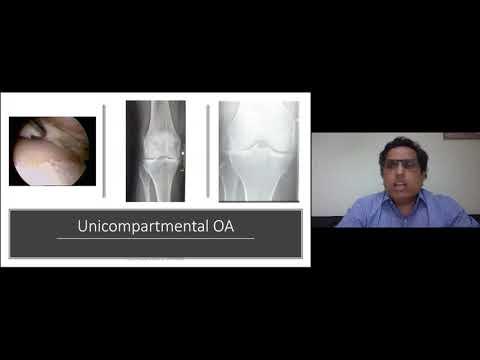 Curbura articulației genunchiului