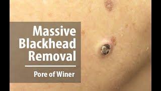 Removing Massive Blackhead | Pore of Winer