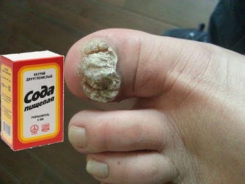 Wie gribok auf der Nägel auf den Beinen zu heilen