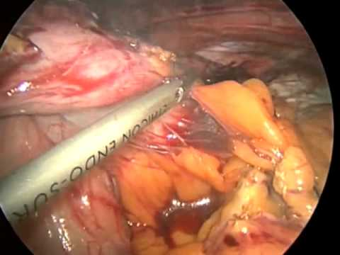 Laparoscopic Hiatal Hernia Repair