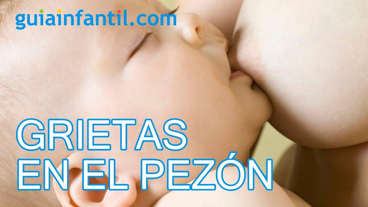 Grietas en el pezón durante la lactancia o pezón doloroso