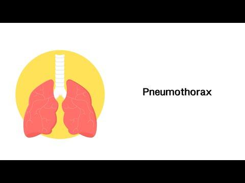 Ob Sie eine Wärmflasche mit zervikalen Osteochondrose setzen