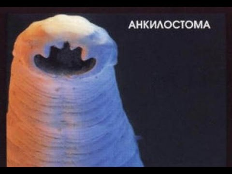 ***Глисты Анкилостома***|***Glisty Ankilostoma***
