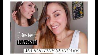 - J-95 Bye Bye L'ACNÉ  - Ma Routine Skincare -