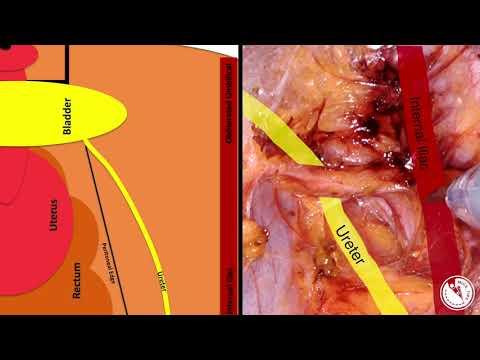 Przestrzenie awaskularne miednicy - przypomnienie struktur anatomicznych