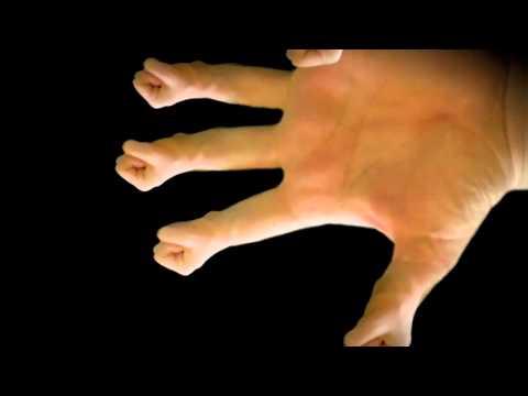 Fibrosen der Prostata Laserbehandlung
