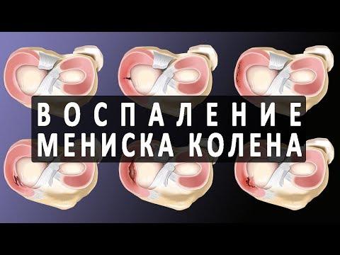 Лечение позвоночника ярославская область