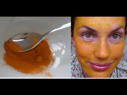 Pigmentation sa mukha pagkatapos ng kapanganakan sanhi at paggamot