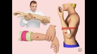 Смотреть онлайн Помощь при артериальном и венозном кровотечении