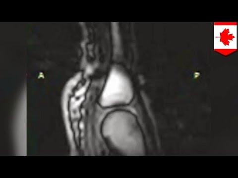 Лфк при остеопорозе коленного сустава