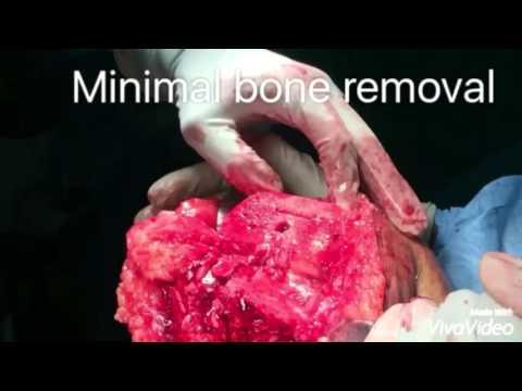 Impingementsyndrom des Schultergelenkchirurgie Video