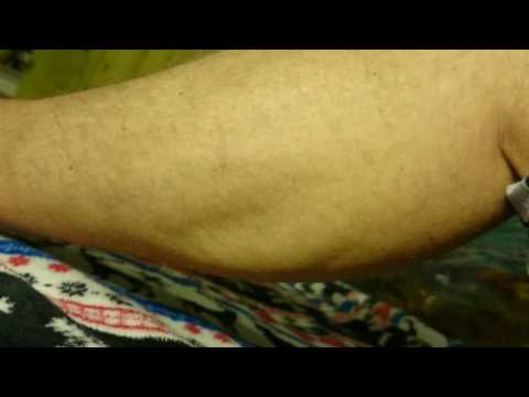 Eine neue chirurgische Behandlung von Prostata-Adenom