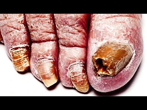Biogel nail treatment