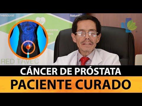 Purificar piedras de próstata