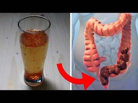Gastric cancer pubmed