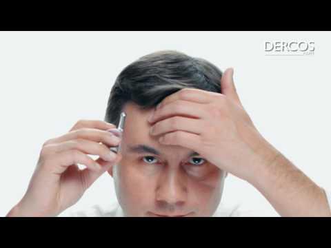 Rozkruszone zęby i powoduje spadek włosów i leczenie