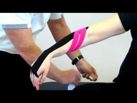 Infiammazione della osteoartrite del ginocchio