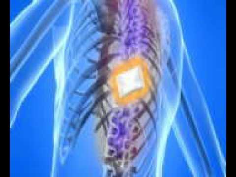 Lartrite del ginocchio esercitazioni congiunte