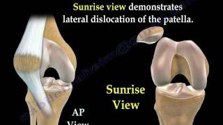 Patellar Dislocations - Everything You Need To Know - Dr. Nabil Ebraheim