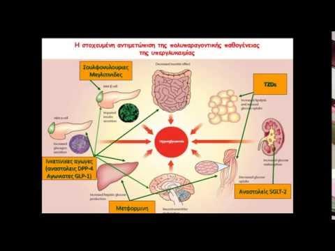 Αιτία της αδυναμίας του σώματος σε σακχαρώδη διαβήτη