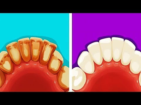 13 EFFECTIVE LIFE HACKS FOR YOUR TEETH