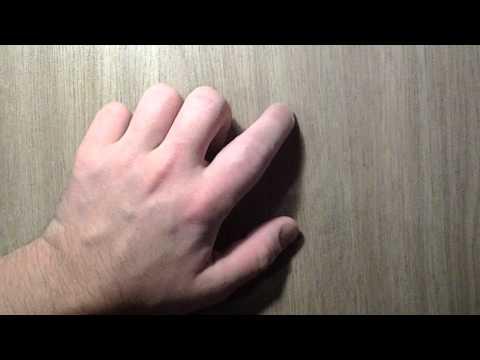 Разрыв сухожилия левой руки. 60 дней (2 месяца)