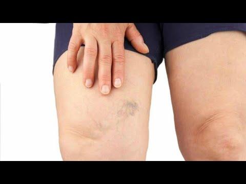 Da li je moguće za masažu vlasišta s hipertenzijom