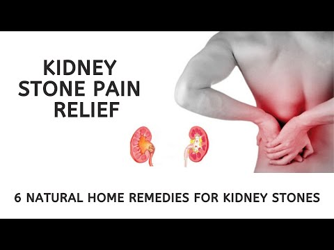 Kidney Stone Pain Relief 6 Natural Home Remedies For Kidney Stones Viralstat