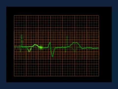 Causa reducida Bottom presión arterial