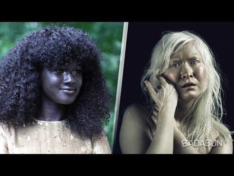 5 Personas con un color de piel único e increíble
