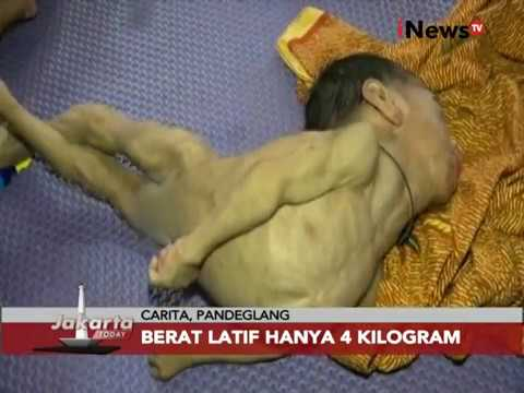 Video Kisah Balita Gizi Buruk Jakarta - Jakarta Today 24/11