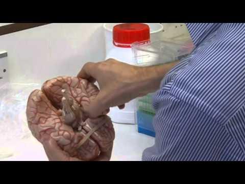 Die Würmer jorkschirskomu terjeru
