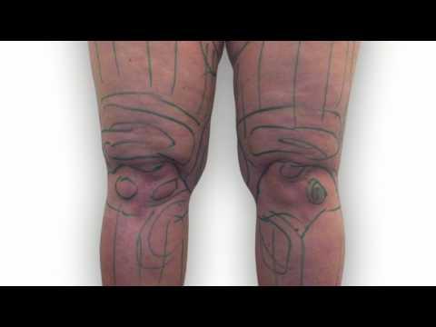 Ob die Beine bei der Thrombophlebitis verbinden