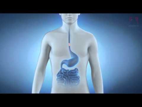 Les aliments ayant un index glycémique élevé pour les diabétiques